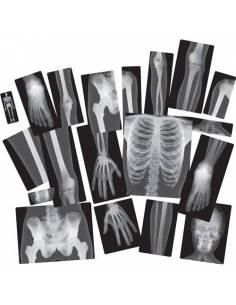 Rayos-X Cuerpo Humano