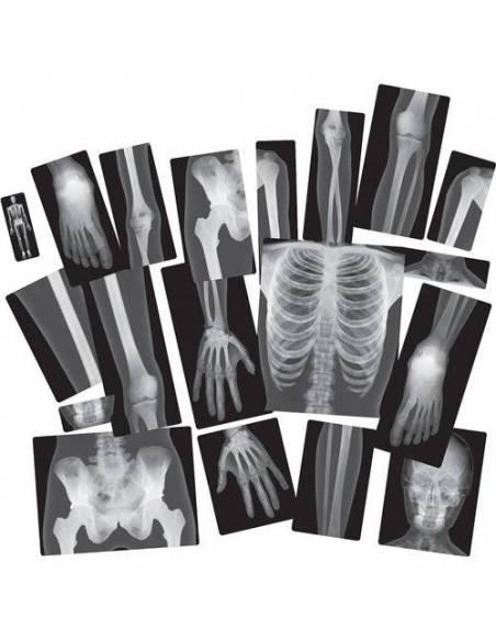 Rayos-X Cuerpo Humano  Cuerpo Humano y Alimentación