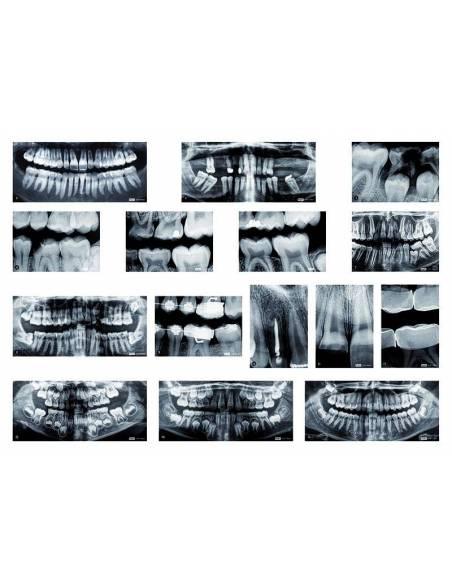 Rayos X Dentales  Ciencia y medio ambiente